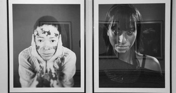 Reatile Moalusi Complexion Pigment Hue Molelo Wa Badimo Absa Gallery vitiligo